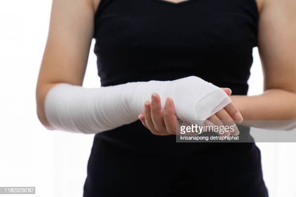 woman with broken arms,woman arm pain - wrist stock pictures, royalty-free photos & images