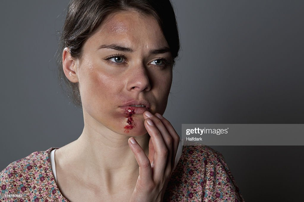 A woman with bruises and bloody lip : Stock Photo