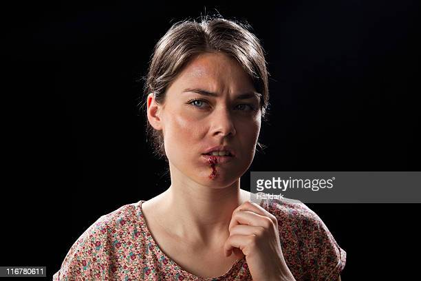 A woman with bruises and bloody lip