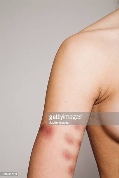 woman with bruises on arm - bruise stock photos and pictures