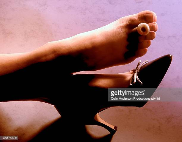 Woman with bunion on foot