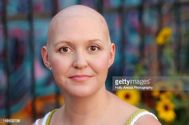 woman with cancer - cancer illness stock photos and pictures