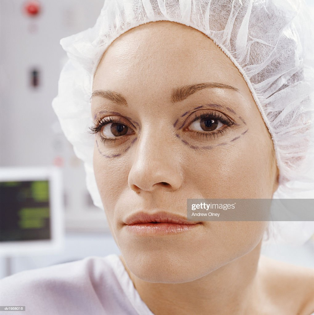 Woman With Cosmetic Surgery Pen Marks Around Her Eyes : Stock Photo