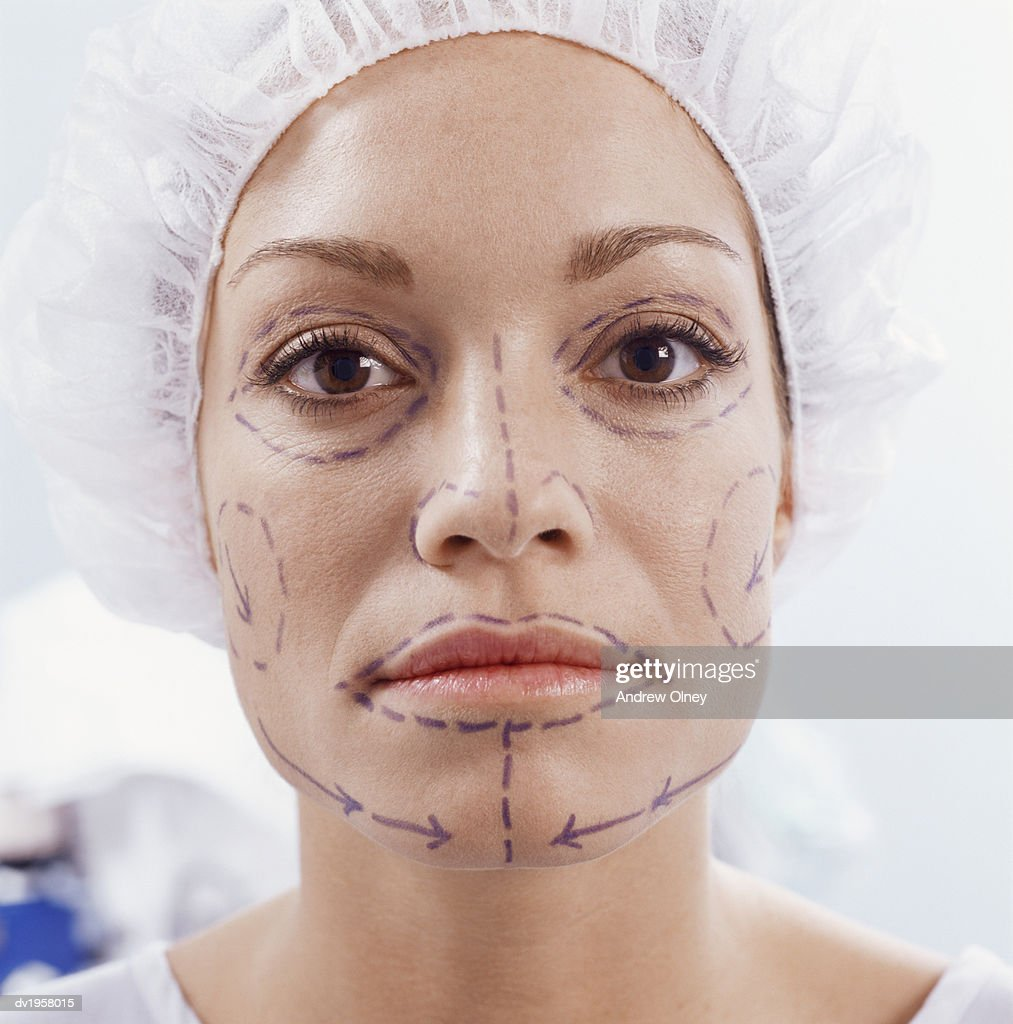 Woman With Cosmetic Surgery Pen Marks on Her Face : Stock Photo