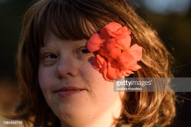 Woman with Down Syndrome with flower in her hair