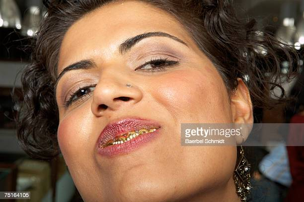 902 Gold Tooth Photos And Premium High Res Pictures Getty Images