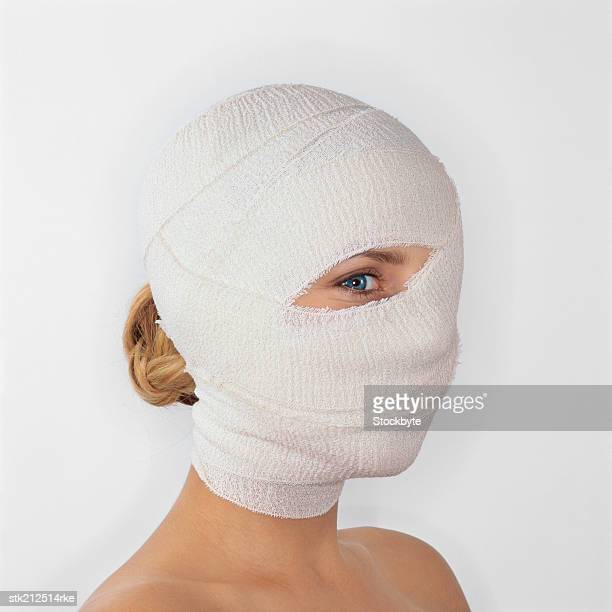 woman with her head covered with bandages with just one eye uncovered