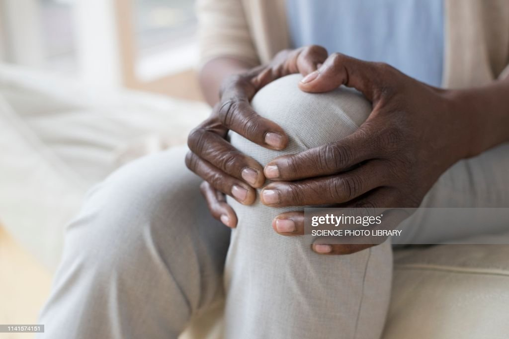 Woman with knee pain : Stock Photo