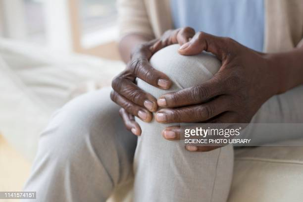woman with knee pain - osteoporosis stock pictures, royalty-free photos & images