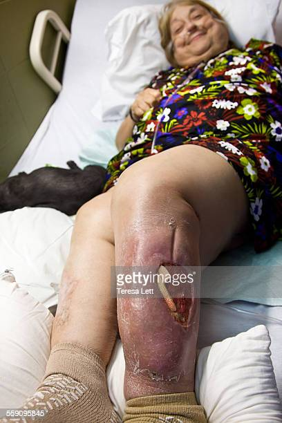 woman with large open wound on leg - oreiller geant photos et images de collection