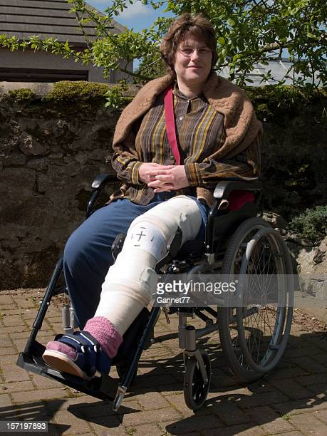 Woman with leg in cast