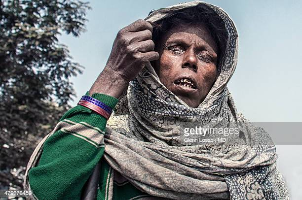 CONTENT] A woman with Leprosy stands on the street she is blind and begging Dhaka Bangladesh during Ijtema