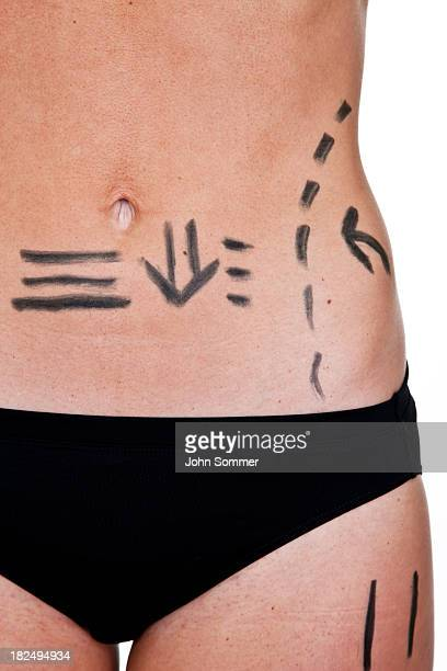 Woman with marked outline for cosmetic surgery