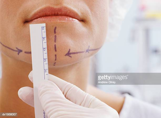 woman with pen marks on her face having her chin measured for cosmetic surgery - andrew chin stock pictures, royalty-free photos & images