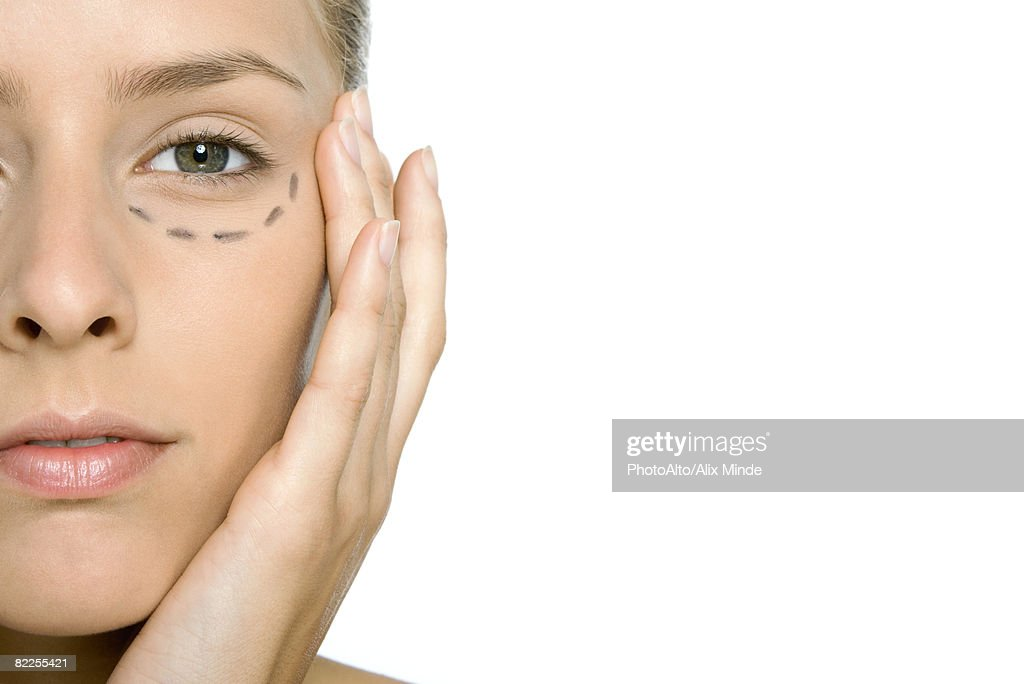 Woman with plastic surgery markings under her eye, close-up, cropped : Stock Photo