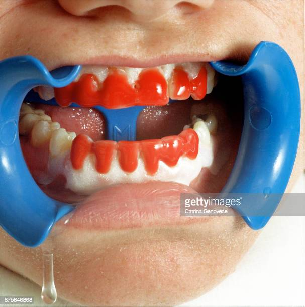 Woman with Teeth Whitening Gel application for use with  Lasers and LED lamps