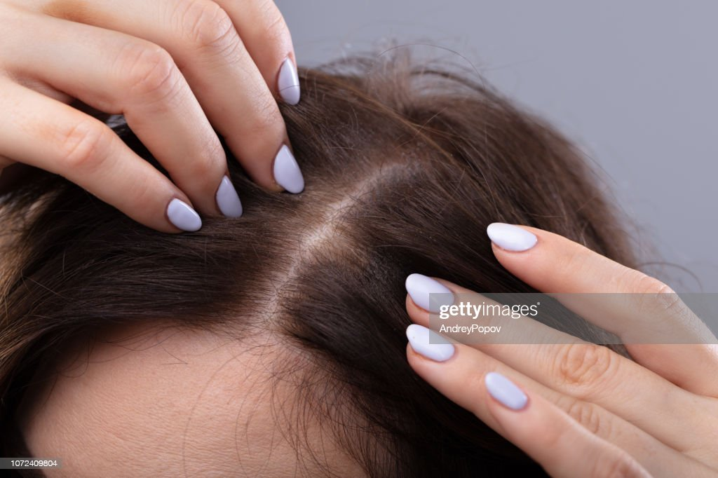 Woman With Thinning Hair : Stock Photo