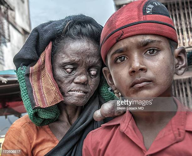 CONTENT] Woman with very advanced leprosy lesions of her eyes and upper members She holds onto her normal handsome son as they stroll along BANDRA...