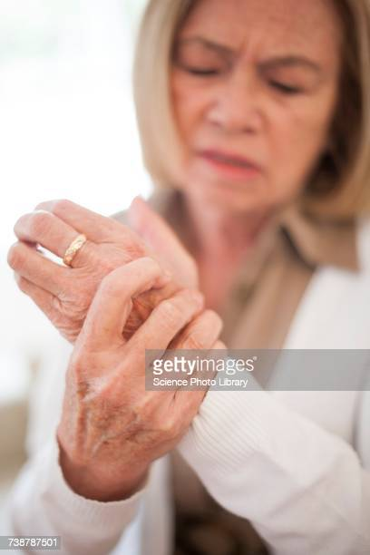 woman with wrist pain - rheumatism stock pictures, royalty-free photos & images