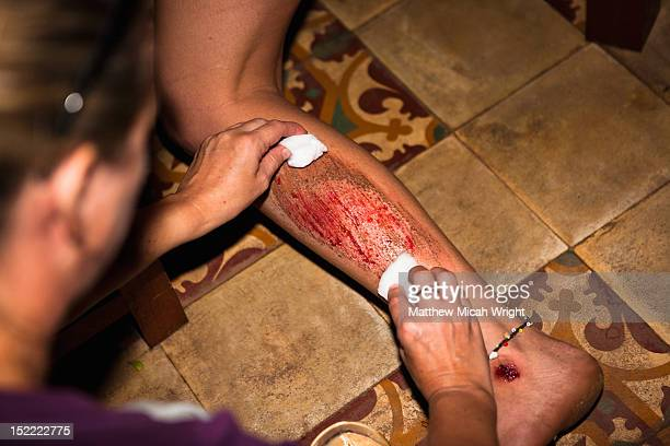 a woman's leg injury after a motorbike accident. - leg wound stock pictures, royalty-free photos & images