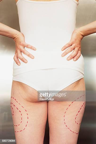 woman's thighs marked for liposuction - liposuccion fotografías e imágenes de stock