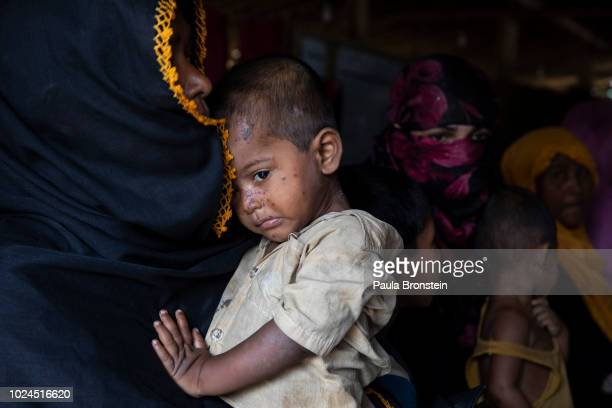Women and children are seen waiting to be treated in the Médecins Sans Frontières/Doctors Without Borders clinic on August 27 2018 in Balukhali camp...