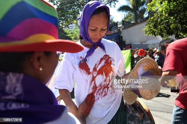 Women demand justice for the 5.929 women killed in the past 15 years in Honduras, in the framework of the International Day for the Elimination of...