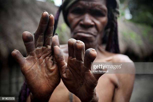 Women of the traditional Dani tribe from Lembah Baliem show their amputated fingers on October 10 2009 in Wamena West Papua Indonesia The primitive...