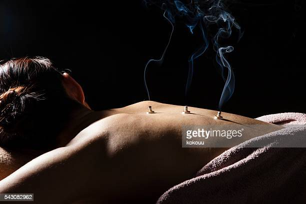 women put the coals on his back at the spa - acupuncture stock pictures, royalty-free photos & images