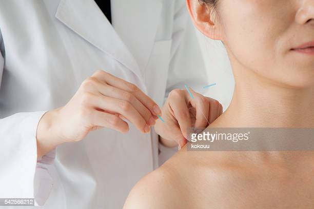women receiving acupuncture treatment for beauty - acupuncture stock pictures, royalty-free photos & images