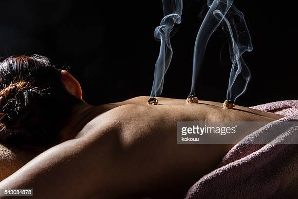 women receiving moxibustion treatment to cure back pain - acupuncture needle stock pictures, royalty-free photos & images
