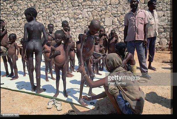 Women wash starved orphans in a relief center during the famine crisis In the 1980s warlord factions joined together to overthrow then president Siad...