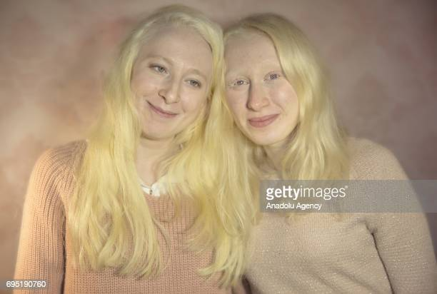 Women with albinism Elif Kayalar and Aysenur Sena Tarakci pose for a photo in Istanbul province of Turkey on November 24 2017 Albinos a rare group of...