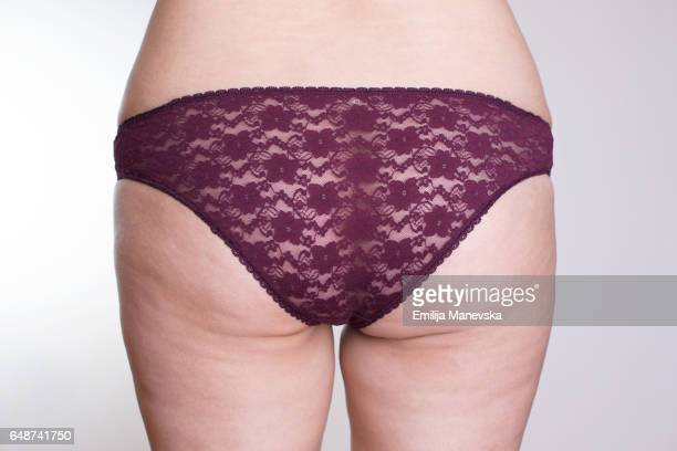 Women with cellulite problem
