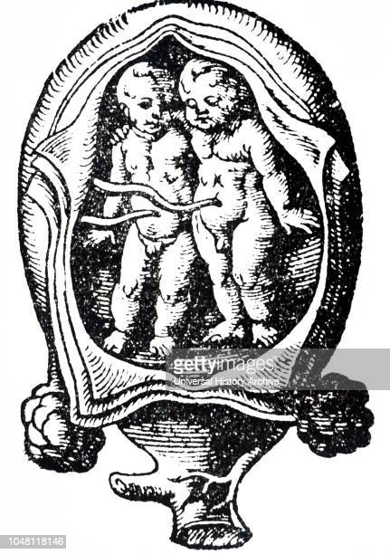 A woodcut depicting twins in the uterus Woodcut by Jost Amman a SwissGerman artist Dated 16th century