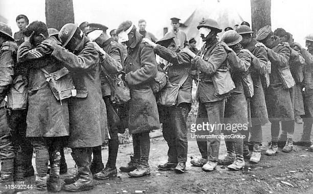 World War I 19141918 The blind leading the blind Men of the 55th British Division casualties of a poison gas attack walking in single file with hand...