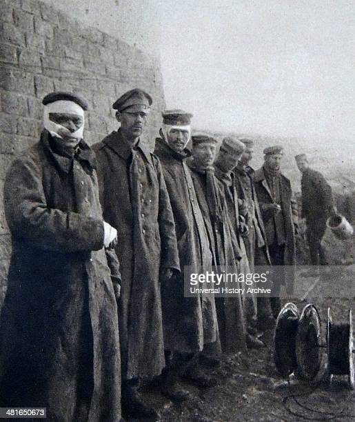 World War I german wounded soldiers during the 1916 Second Battle of Verdun offensive