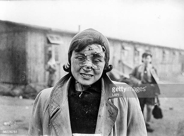 World War II Deportee of BergenBelsen concentration camp wounded to a face