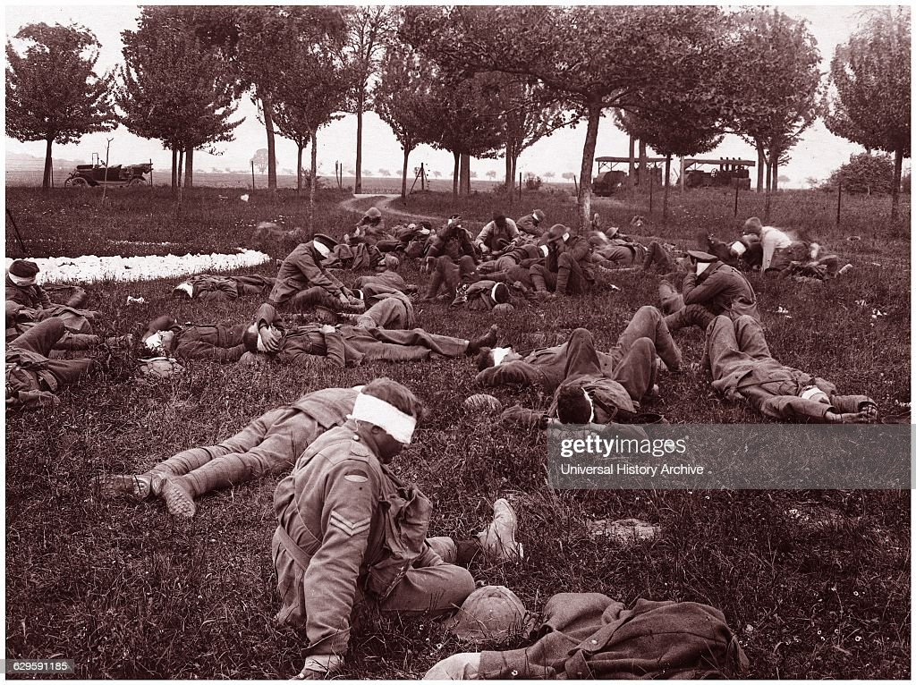 World war One German gas attack in France 1918 : Photo d'actualité