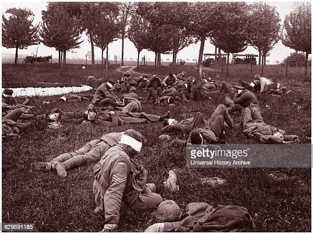 Australian soldiers as casualties after a German gas attack in France 1918
