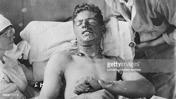 World war One Canadian soldier in a field hospital with mustard gas burns 1915