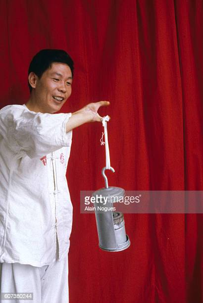 """World-first, having succeeded in creating a new """"hand"""" for this Chinese factory worker by grafting two toes to his arm , he shows off his new-found..."""