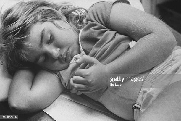 World's first simultaneous heart and liver transplant patient Stormie Dawn Jones lying down and looking at her fingers chest scar visible