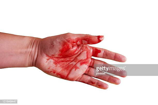 wound - wounded stock photos and pictures