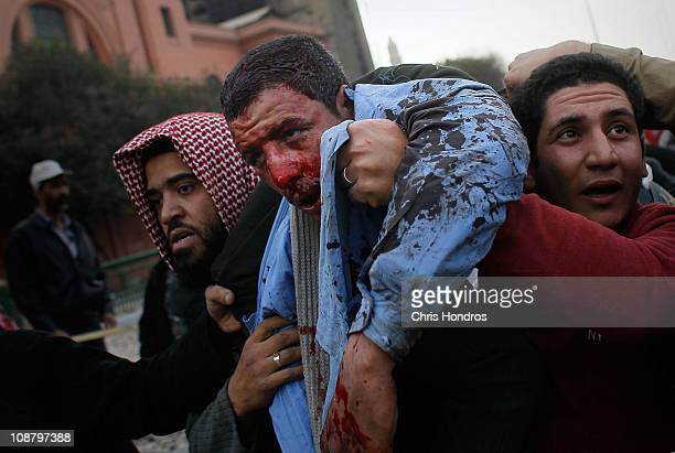 A wounded antigovernment protester is carried off after being struck by a rock during clashes with progovernment supporters near a highway overpass...