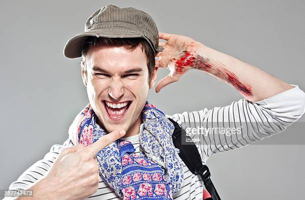 wounded backpacker - blood clot stock pictures, royalty-free photos & images
