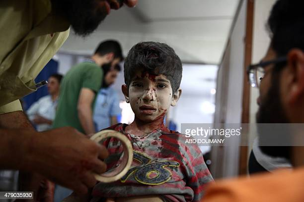 A wounded boy receives treatment at a makeshift hospital in the rebelheld area of Douma east of the Syrian capital Damascus following reported air...