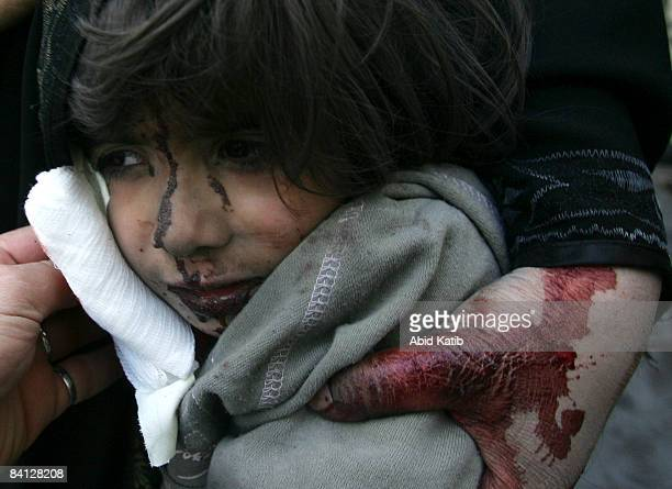 A wounded child awaits medical attention at the Shifa hospital on December 27 2008 in Gaza City Gaza Israel's air force fired about 30 missiles at...