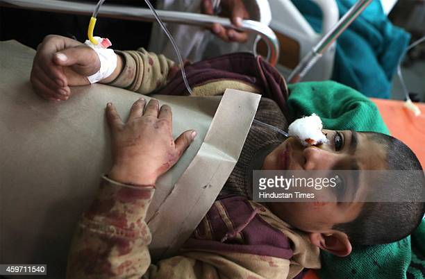 Wounded child lie on stretchers as they wait for treatment at the citys main hospital following a grenade attack on November 29 2014 in Srinagar...