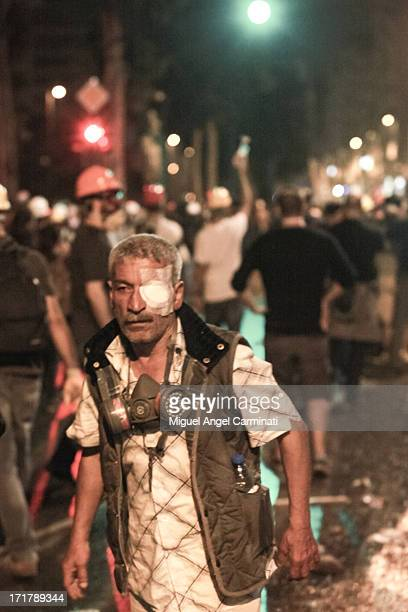 Wounded demonstrator carrying a gas mask attends a protest in Harbiye area near Gezi and Taksim Square